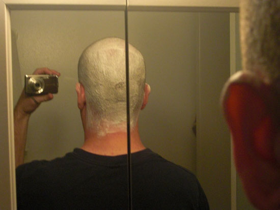 A picture of the back of my head lathered.
