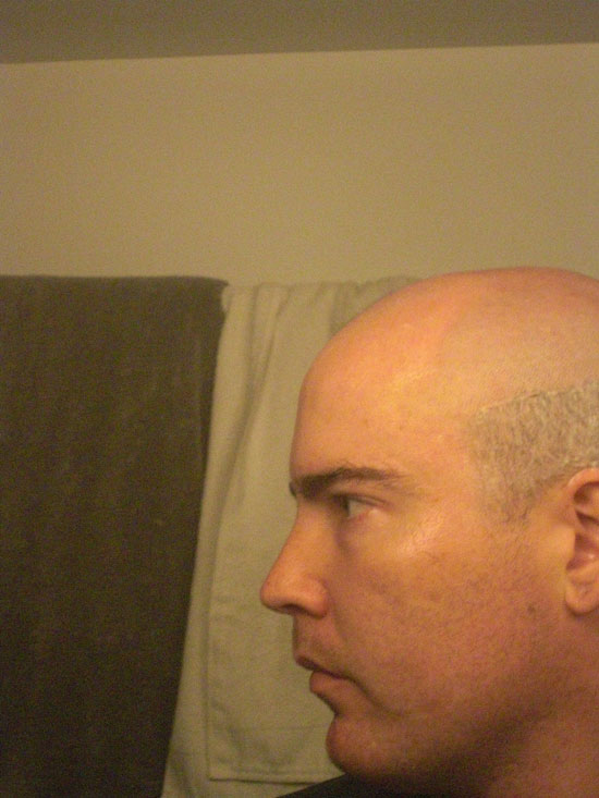 A picture of the side of my head, showing where I change the way I hold the razor.