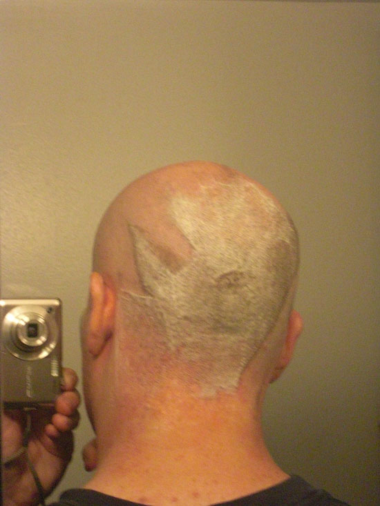A picture of the back of my head after shaving front and sides of my head