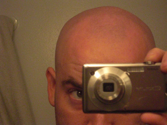 Picture of the front of my head after shaving