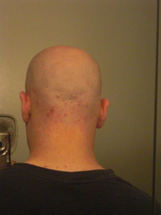 Back of my head after finished shaving